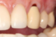 Dentist Port Macqaurie Cerec