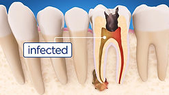 entist Port Macquarie root canal