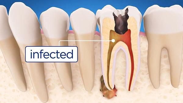 root canal dentist por macquaire