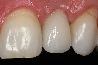 Port Macquaire Dental Implant