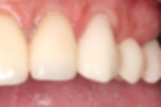 Port Macqaurie Dental Cerec