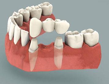 Sundial Dental Bridge, Dentist Port Macqurie