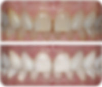 port macquarie teeth whitening dentist