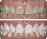 entist Port Macquarie teeth whitening