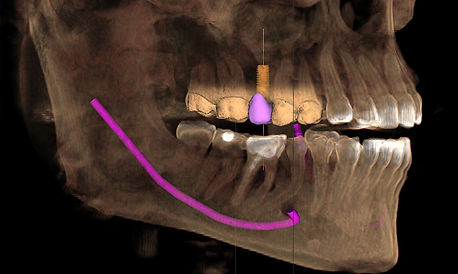 Sundial Dental 3D X-RAY, Dentist Port Macquarie