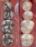 Sundial Dental Cerec