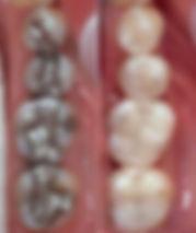 Sundial Dental Cerec, Dentist Port Macquarie