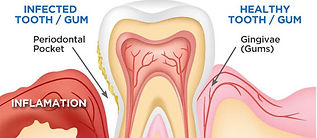 entist Port Macquarie Gum Disease treatment