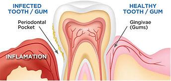 entist Port Macquarie gum disease treament