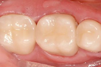 Cerec Crowns after Sundial Dental