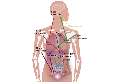 Multiple-sites-of-metastasis-for-cancers