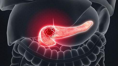pancreaticcancer_1280.jpg