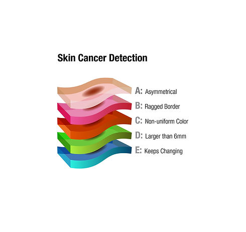 Skin-Cancer-Detection.jpg
