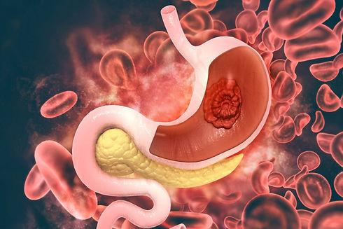 stomach cancer 4.jpg