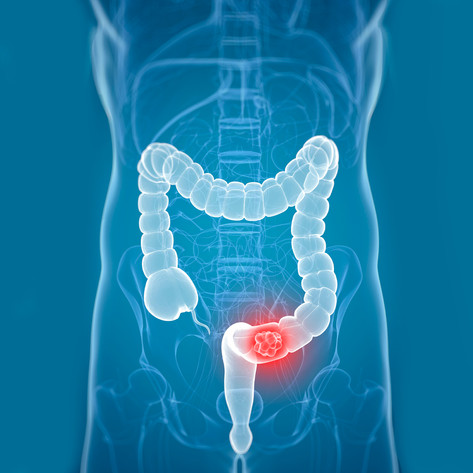Confronting Colorectal Cancer: A No-Holds-Barred Approach