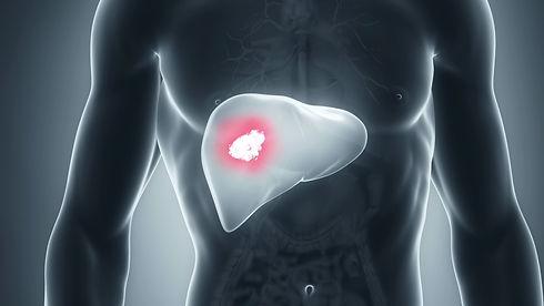 livercancer_1280.jpg