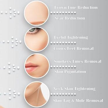 Treatments-Fibro-800x567_edited.jpg