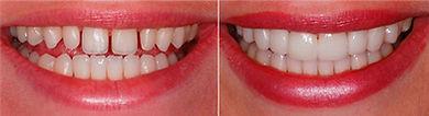 lentes-de-contato-dental-003.jpg