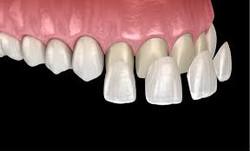 Lente de Contato Dental
