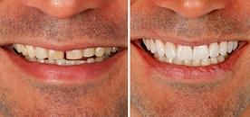 lentes-de-contato-dentais-17112017081200