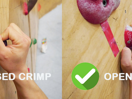 A2 Pulley Injuries in Rock Climbing