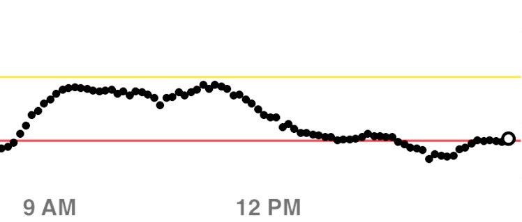 Flatline on the Dexcom