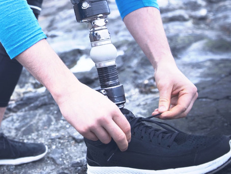 Prosthetic Feet - An Overview