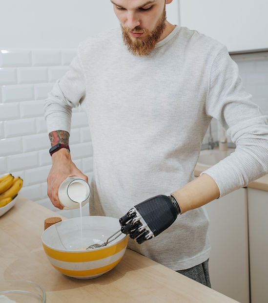 A below elbow amputee using an advanced prosthetic hand to cook. Bionic hand.