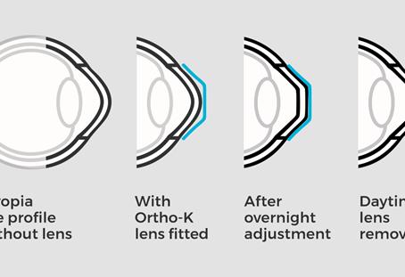 What is Orthokeratology?