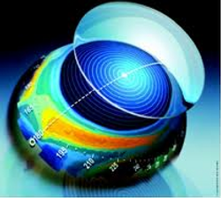 corneal topography medmond.png