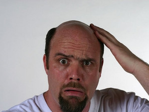 Top 5 Causes of Hair Loss