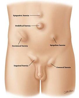 img-hernias-e1434041468592.jpg