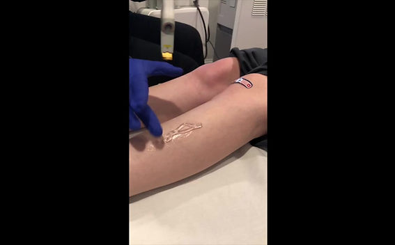 Watch a Cutera Excel V Laser Treatment on the legs.