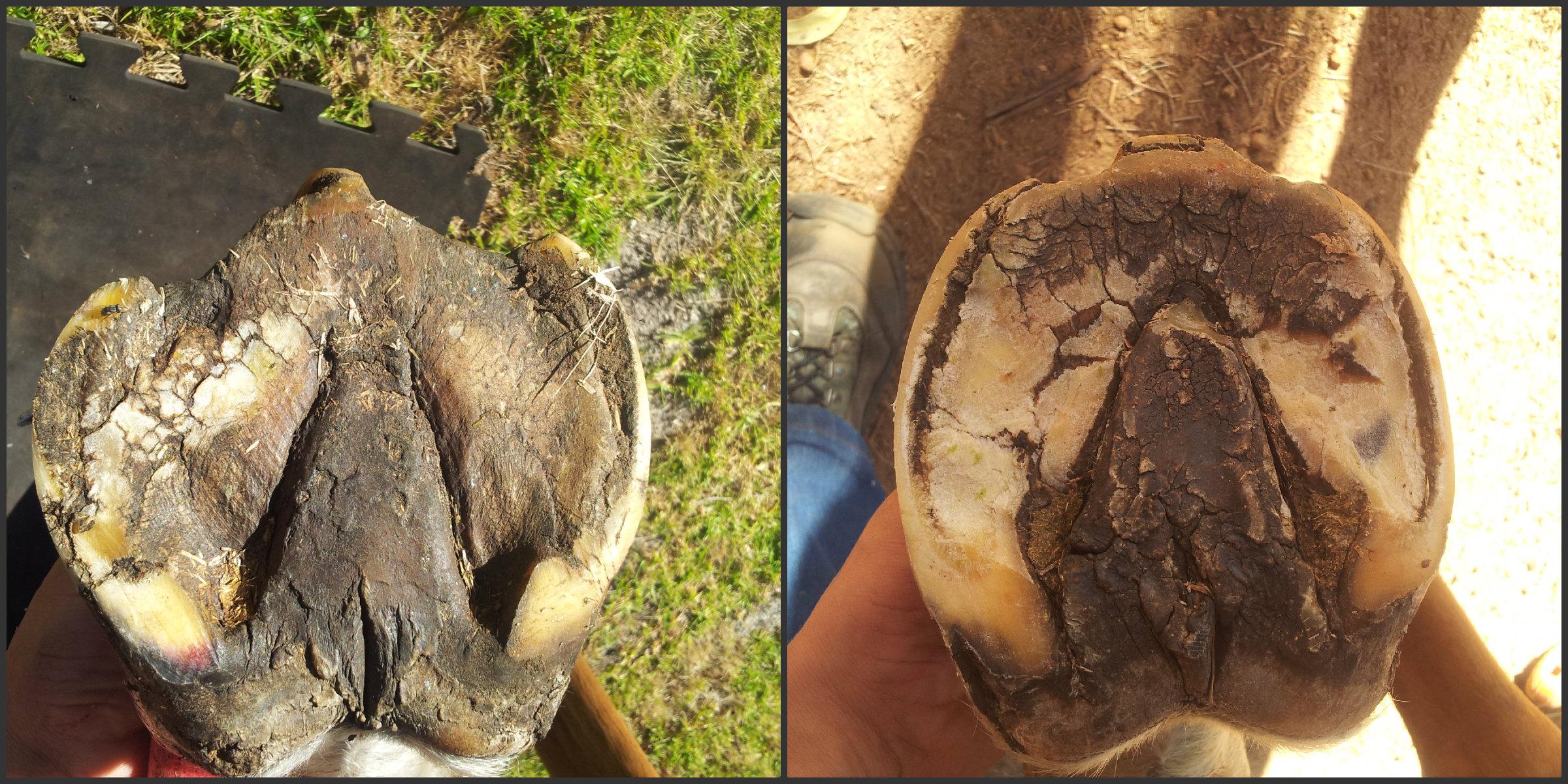 Seedy toe/ Subsolar abscess