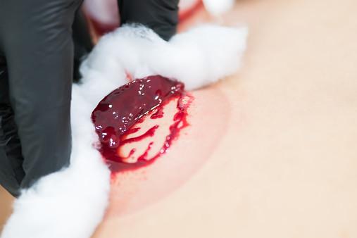 """""""Jelly- like blood""""."""