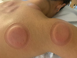 Just minutes after Wet Cupping.