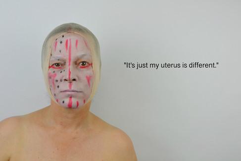 Uterus ©