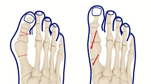 pieds3.png