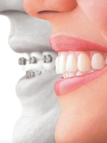 Other Dental Therapies