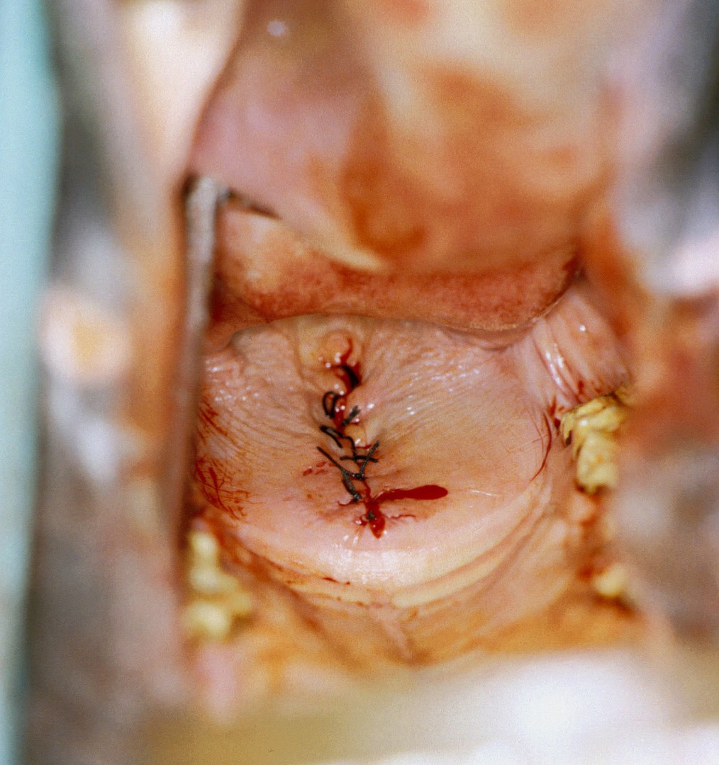 Ahern Palatoplasty