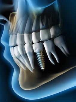 Implant Denstistry