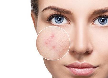 Acne-skin-condition-kallista.jpg