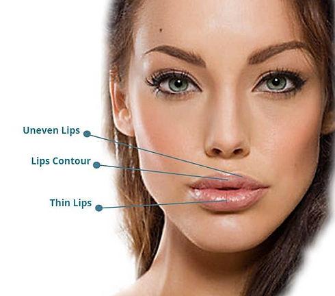 Lip enhancement.jpg