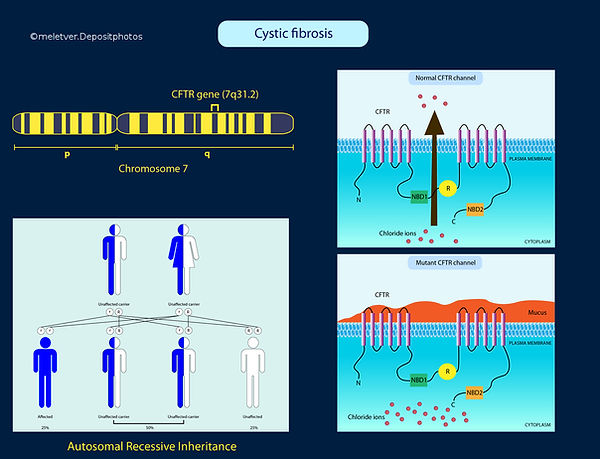 Cystic Fibrosis mutation