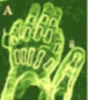 Disfigurement of hand