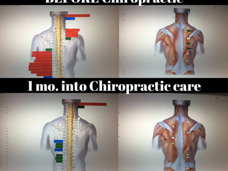 Understanding the Incredible Value of Chiropractic Care: by Dr. Nathan Servey, your Victoria, MN Pri