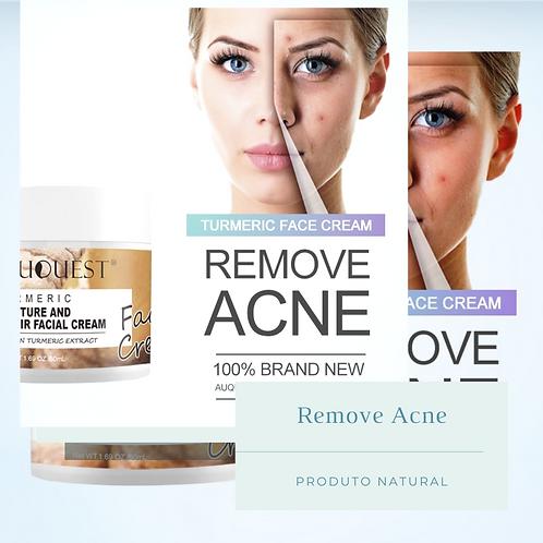 Creme Natural para Remover Acnes Auquest  50gml
