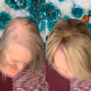 hairlosssolutiondallas-125.jpg