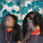 hairlosssolution.tif