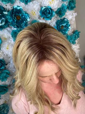 hairretoration